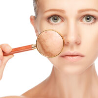 Tache brune au visage et citron : le remède à tester